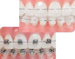 orthodontist in Glasgow